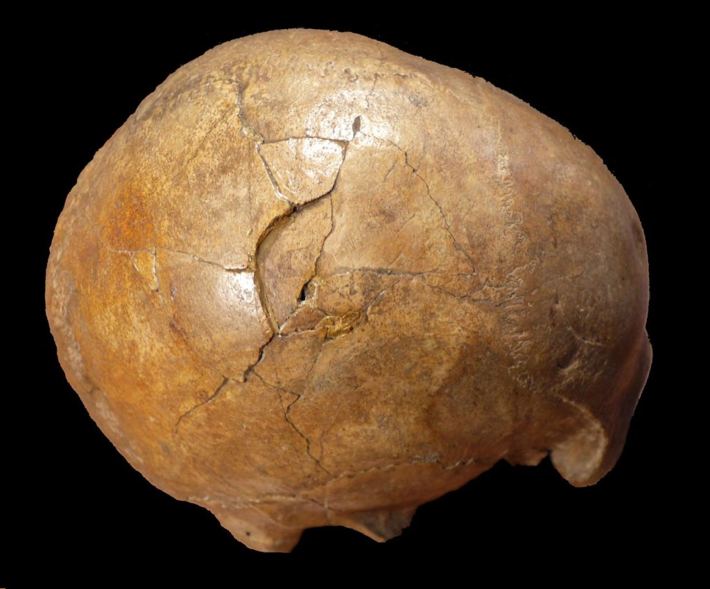 Right lateral view Cioclovina calvaria exhibiting a large depressed fracture - 33 000 years old fossilized skull discovered in south-west of Transylvania, Romania